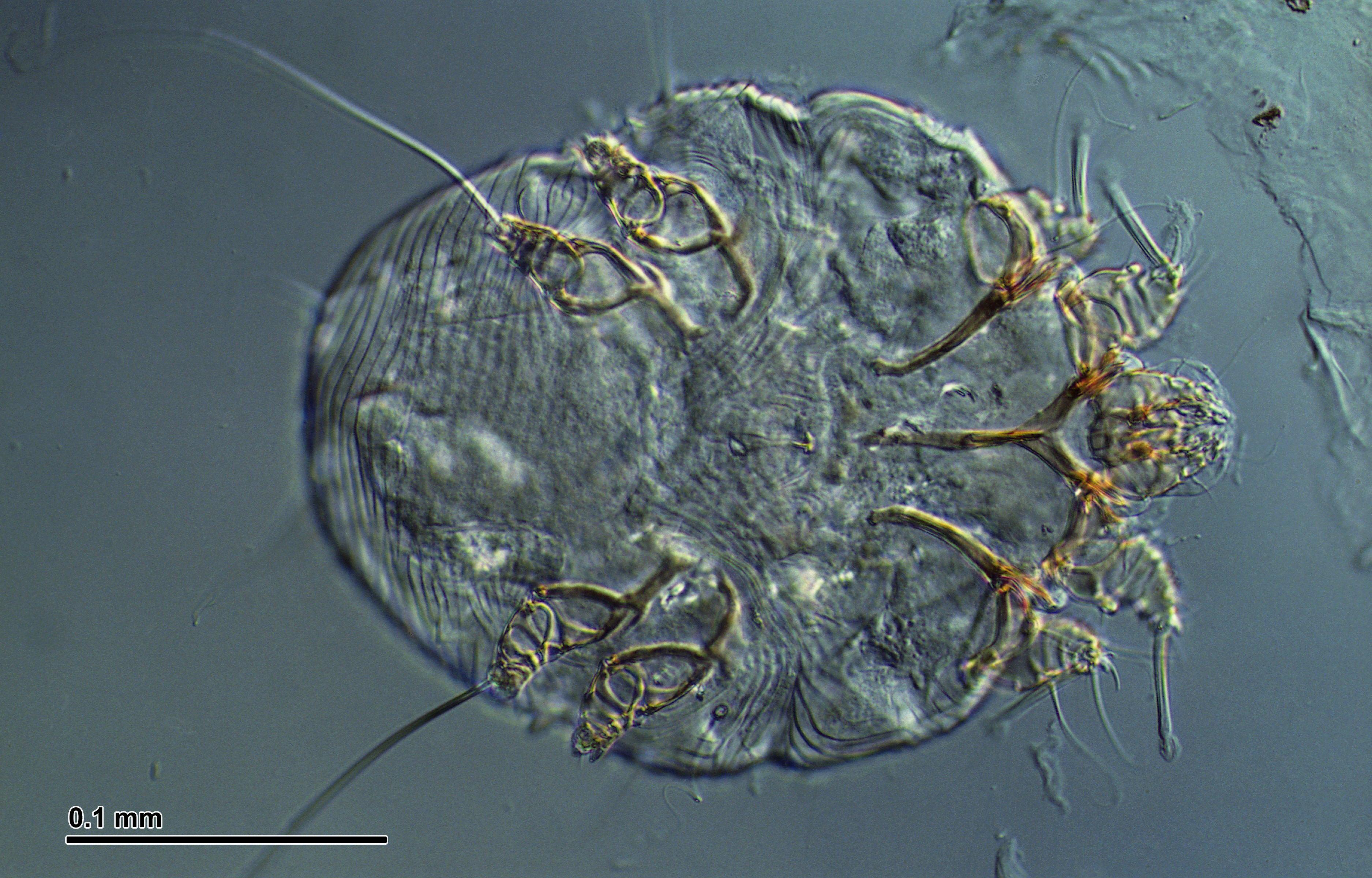 Resultat d'imatges de solenoide cartarescu